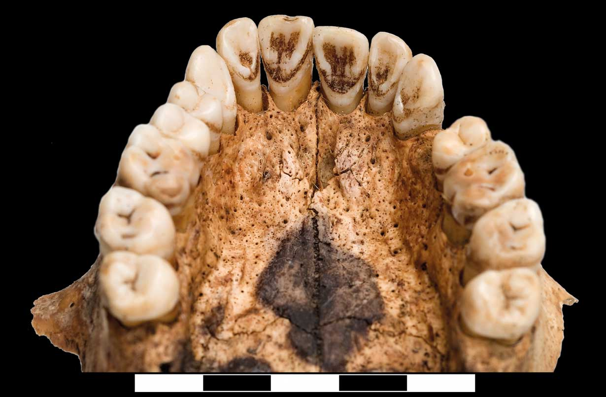 Tabakablagerungen an der Innenseite des Oberkiefers zeugen davon, dass Tabak auch damals ein verbreitetes Suchtmittel war. (Foto: W. Reichmann)